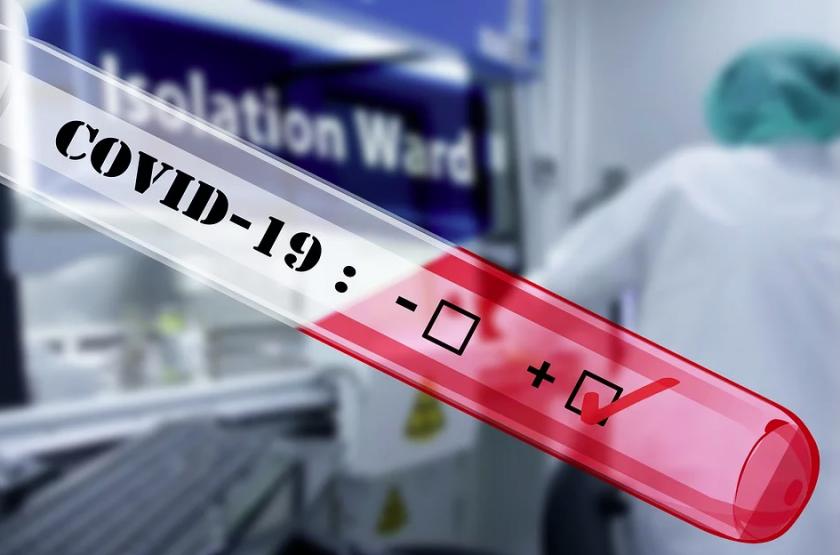 РЗИ Пазарджик: 78 са новите случаи с коринавирус в областта (29-11-2020)
